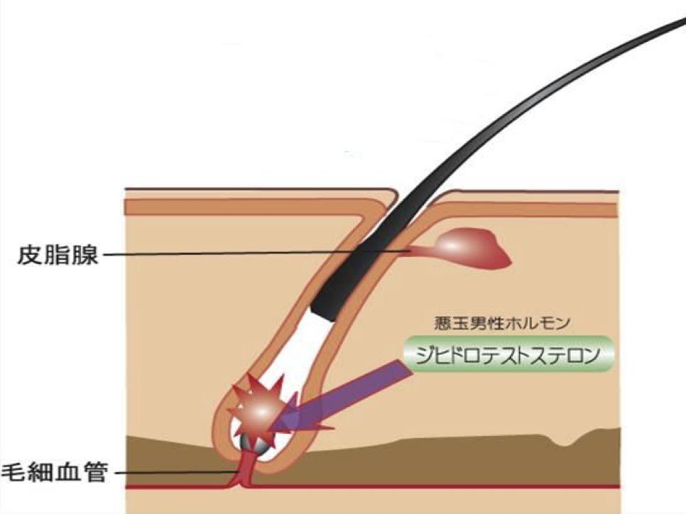 AGAのメカニズム、脱毛|薄毛・発毛専門のスーパースカルプ岡崎