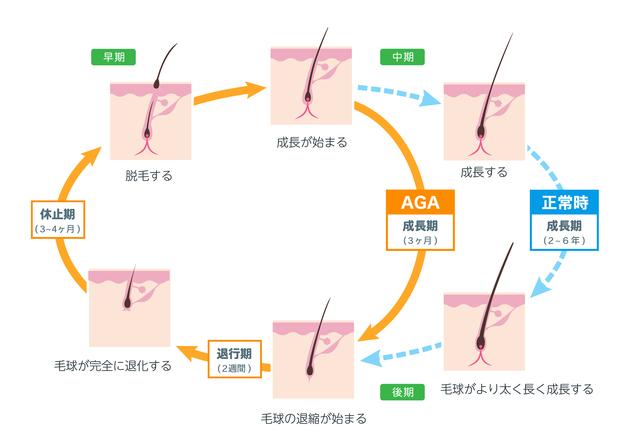 発毛サイクルとAGAのサイクルの図|薄毛・発毛専門のスーパースカルプ岡崎